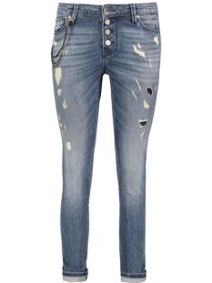 Only Jeans onlTYLER SK GIRLFRIEND DNM JEANS RI 15119577 Medium Blue Denim