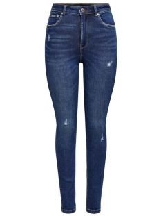 Only Jeans ONLMILA LIFE HW SK ANK  BJ374 NOOS 15209155 Dark Blue Denim