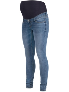 Noppies Positie broek 9010032 JEANS OTB SKINNY AVI P142 EVERY DAY BLUE