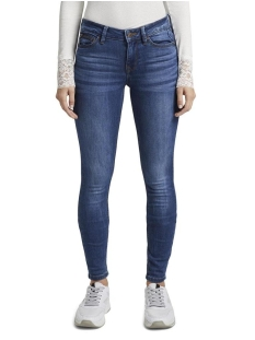 jona 1017148xx71 tom tailor jeans 10113
